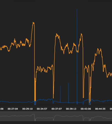 Why do I get very high pace peaks in my data with my Garmin